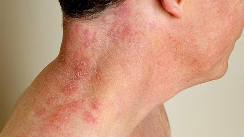 شناخت موارد غیر طبیعی در پوست